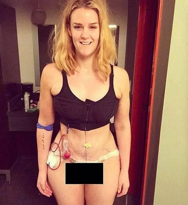 """""""減掉85公斤成為女神,卻招來無數罵聲,於是她發了一張照片··"""""""