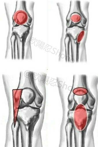 """""""膝關節康復訓練:7個動作康復髕腱炎,髂脛束症候群緩解膝蓋疼痛"""""""