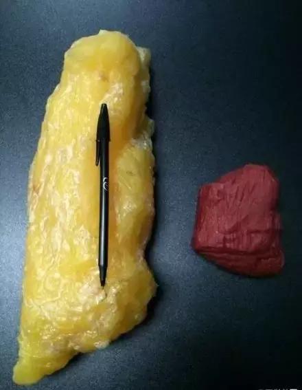 18斤脂肪居然長這樣,嚇死寶寶了!