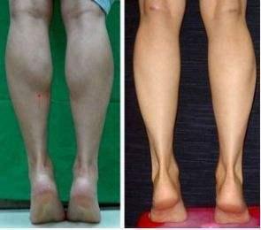 別小看幾個拉伸動作,讓肌肉緊繃,小腿細長好看!